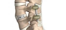 Intervenţii chirurgicale de stabilizare de coloană vertebrală realizate în premieră la Spitalul Judeţean de Urgenţă din Miercurea Ciuc