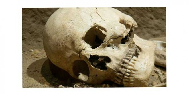 Descoperire macabră la Bălan: o femeie a găsit un craniu uman într-o pădure din apropierea localităţii